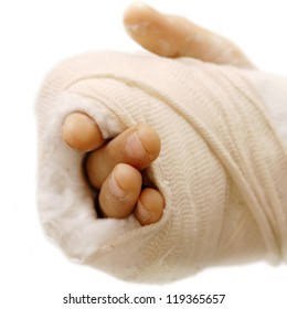 broken arm bone in a cast and bandages over white background isolated