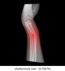 broken arm, complete distal fracture of the forearm, sideview with red illumination