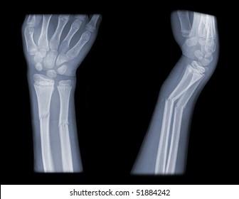 Broken Arm Xray Images, Stock Photos & Vectors | Shutterstock