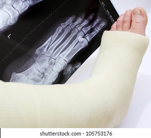 broken foot in a cast with xray of broken foot behind