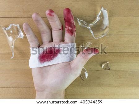 Broken Glass Cut Hand Stockfoto Jetzt Bearbeiten 405944359