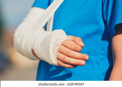 Broken hand of the little boy injured after accident