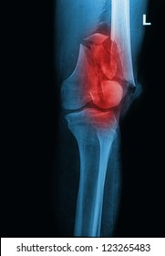broken human thigh x-rays image ,Left leg fracture