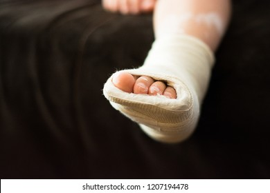 Broken leg of little kid with bandage