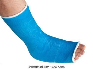 broken leg in a plaster cast isolated on white