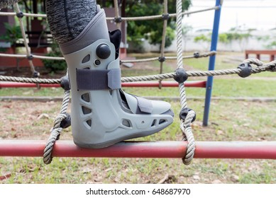 Broken leg the splint for treatment of injured woman on play ground background.