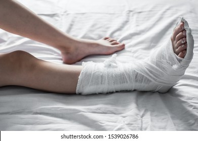 Broken leg in white plaster lies on the bed. A broken leg in white plaster lies on the bed. Health and medicine concept
