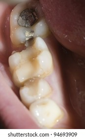 broken molar and amalgam filling