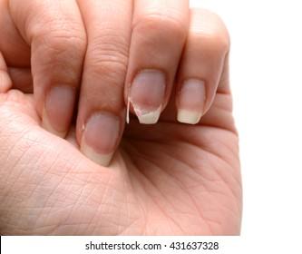 Broken Nail - Female Hand