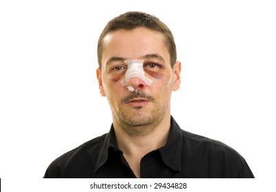 broken nose and black eyes post operation