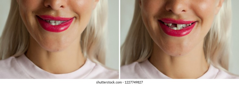 Broken tooth and Dental implant before and after.