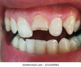 Broken tooth. Broken upper incisor in a man mouth. Man shows oral cavity to the dentist. Treatment of a broken tooth.