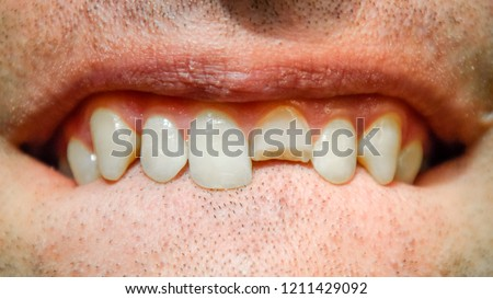 Other Wedding Jewelry Diamond Tiara Cleaning The Oral Cavity.