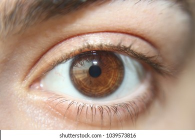brown eye with small pupil