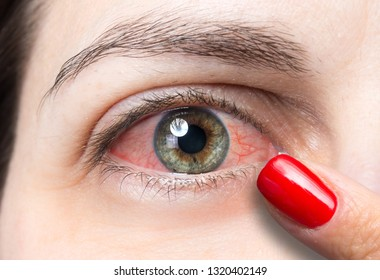 Brown and grey eye of girl close up suffering from redness