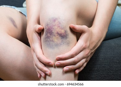 Bruise injury on young woman knee. Close up image of female person sitting on sofa and holding in hands wounded leg with hematoma