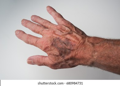 Bruises and Blood Spots Under the Skin that occur on older people