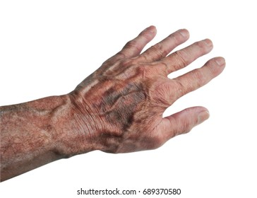 Bruises develop when small blood vessels under the skin tear or rupture on elderly people, on white with clipping path