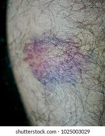 Bruises mark on man's leg due to hard impact