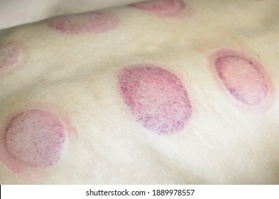 Bruises on the back after cupping. A back after acupressure close up