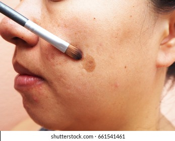 Brush point to melasma on woman face, Skin problems, unhealthy skin, Beauty and cosmetics concept