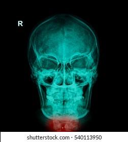 Bullet in the neck bone