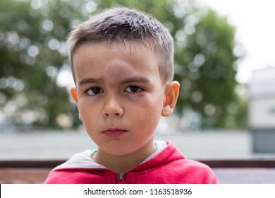 bump on a forehead. black eye. a little boy