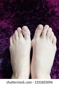 Bunion feet hurtful bony lump based of big toe damaged joint deformation feet physical pain caucasian inflammation deformed swollen feet right and left foot