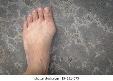 Bunion in foot  on  cement floor background.