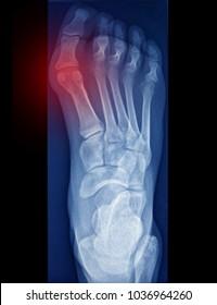 Bunion, foot pain, x ray image