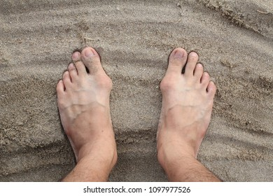 bunion in foot problem on sand
