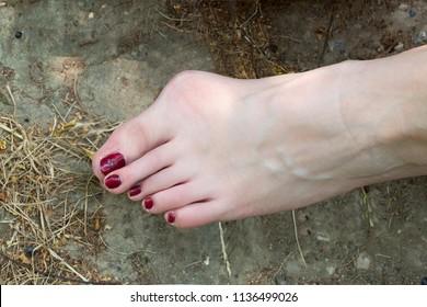 Bunion. hallux valgus, on female foot