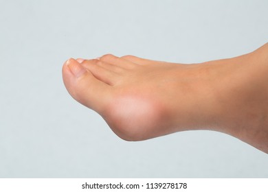 Bunion on woman barefoot isolated on neutral background