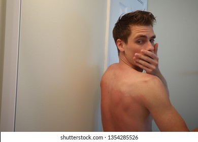 burned back. A man with reddened, itchy skin after sunburn. Skin care and protection from the sun's ultraviolet rays. Man with sunburned skin.