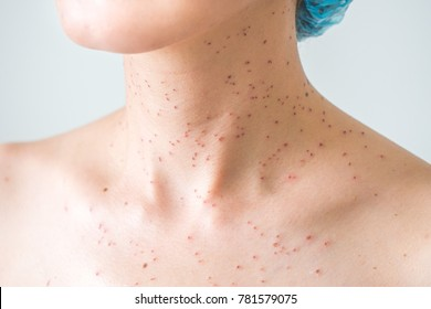 Burns Spots from Laser Treatment for Freckles or Age Spots Removal on Female Bare Skin Macro Closeup Selective Focus. Dermatological Red Wound for Aesthetics.  Mug Shot Neck of Asian Woman Naked Skin.