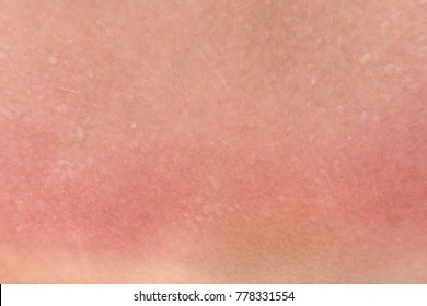 burnt skin sunburn a great extent, the sun, many small blisters closeup