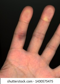 bursted capillary blood vessel in hand finger following minor injury