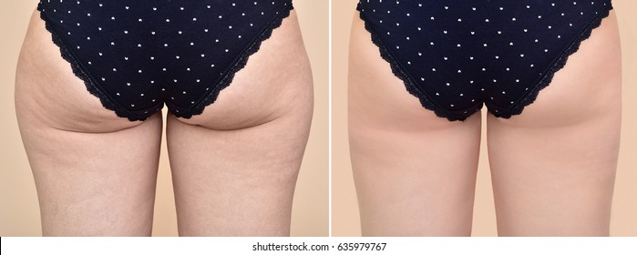 Buttocks of an overweight woman with cellulite before and after medical treatment