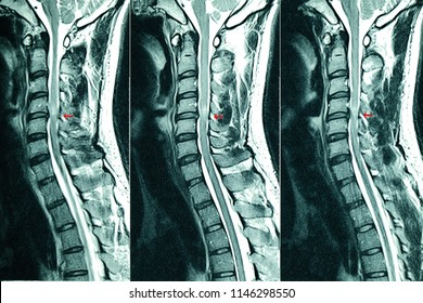 C- Spines MRI scan of a patient with chronic upper extremities weakness showing herniated nucleus pulposus at C4-C5 levels. Chronic neck pain. Cervical disc herniation.  Cord compression lesion.
