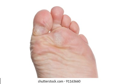 Callus and hyperkeratosis on toes of a male isolated over white background