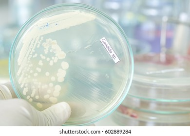 candida colony in petridish with microbiology concept