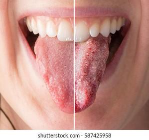 Imágenes, fotos de stock y vectores sobre Thrush Treatment