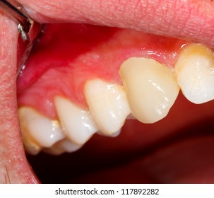 1000 Canine Teeth Pictures Royalty Free Images Stock Photos And