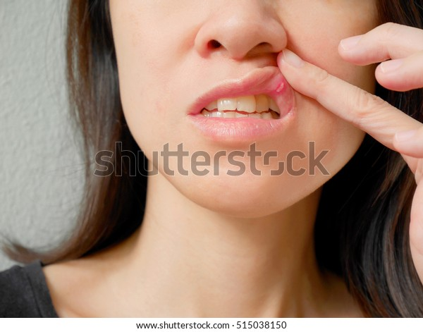 Canker sore on woman upper lip