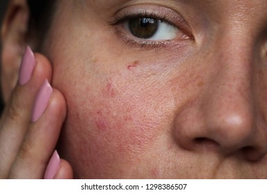capillaries on the girl's face