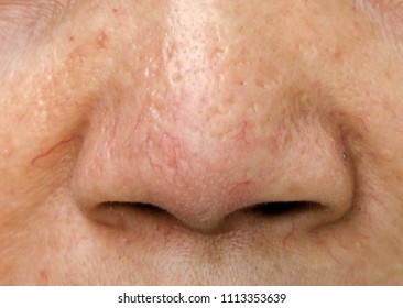 Capillaries on women nose , acne scars ,oily skin and pore