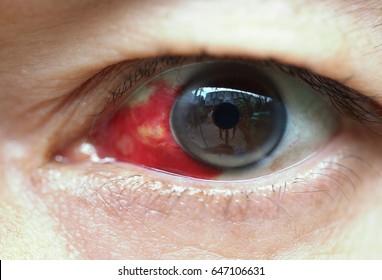 Capillary around sclera broken in human eyes (conjunctiva Hemorrhage)