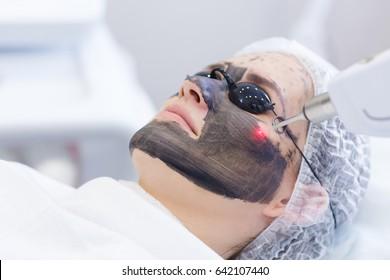 カーボンフェースの剥離方法。レーザーパルスは顔の皮膚をきれいにする。ハードウェア化粧品の治療。光熱分解、皮膚の温暖化、レーザーカーボンの剥離。顔の皮膚の若返り。