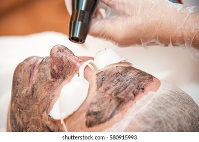 carbon laser treatment skin / laser treatment
