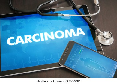 Carcinoma (cancer related) diagnosis medical concept on tablet screen with stethoscope.